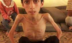 أطفال سورية هدف سهل لبشار