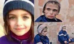 مضايا.. يطرق الطرف خجلاً.. وتخرس الأفواه!!
